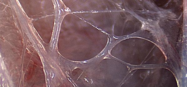 Microvacuoles2-web