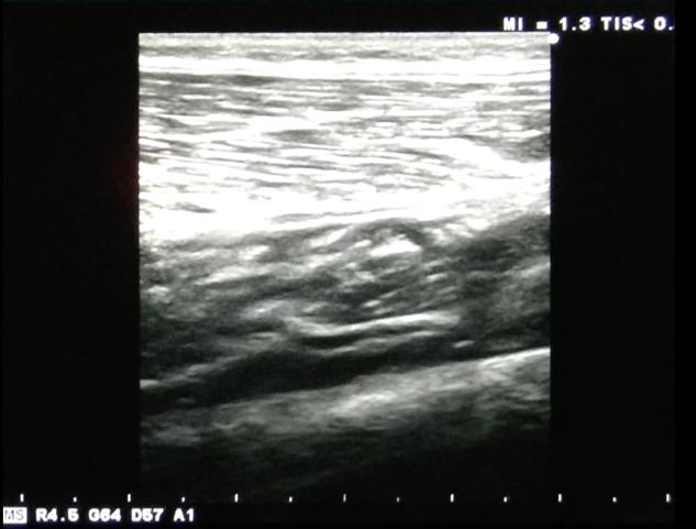 筋膜写真1